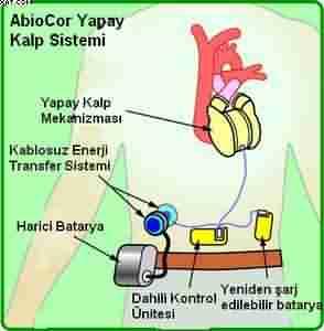 Suni kalp çalışma prensibi